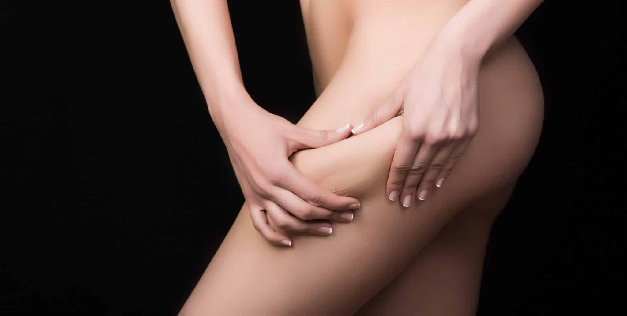 Radiesse Cellulite Reduction